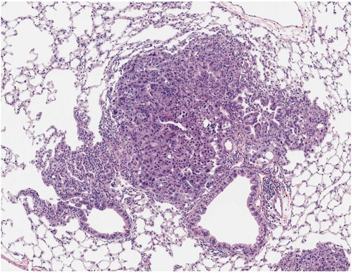 肺癌血染色切片