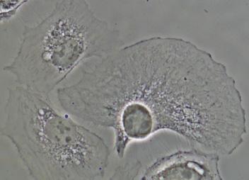 使用CFISPlanFluorELWDADM40XC物镜捕获的BSC-1细胞