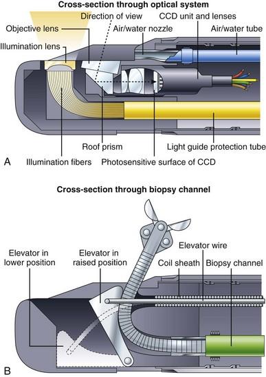 十二指肠镜远端头组件